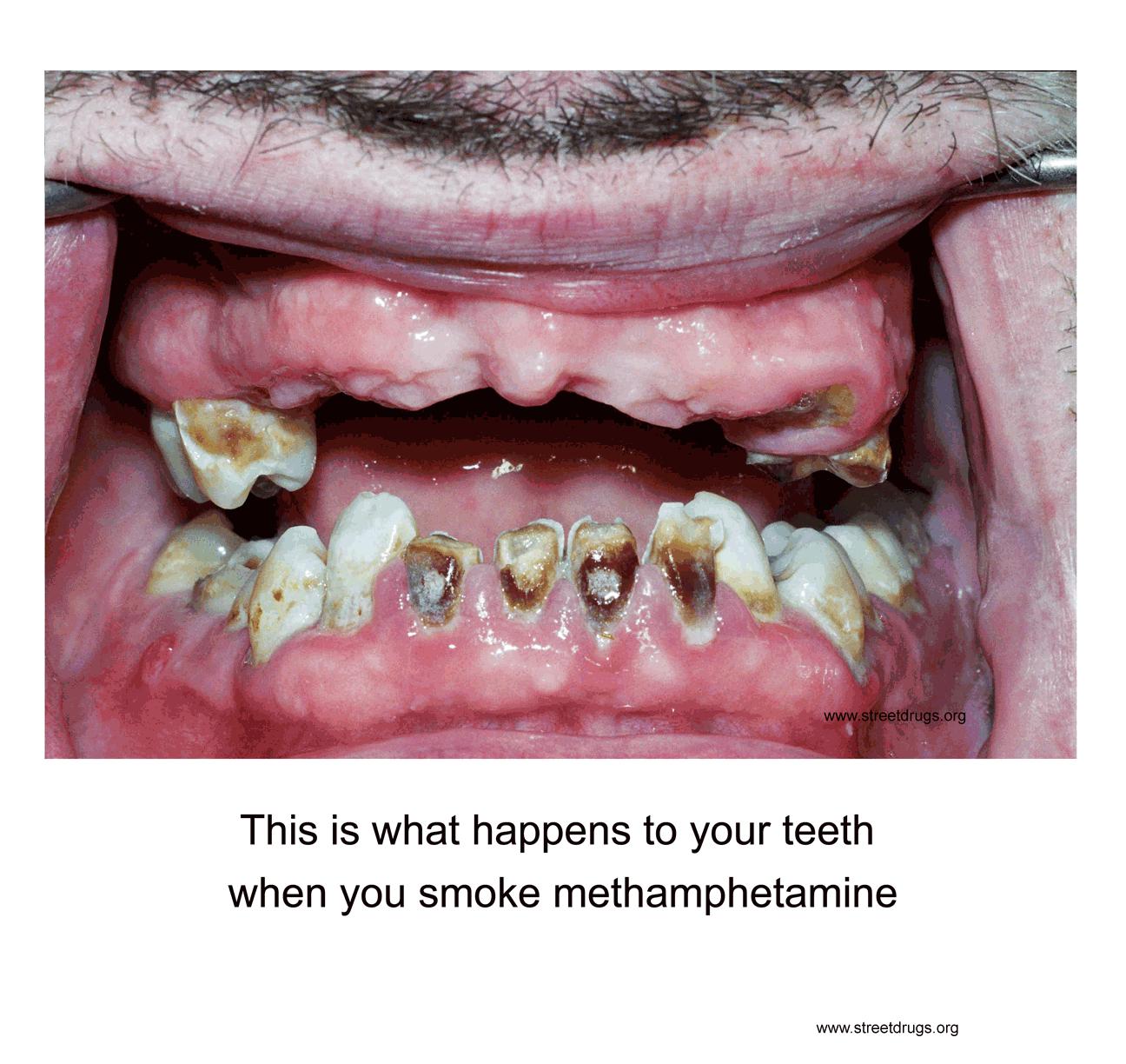 Meth Teeth Poster