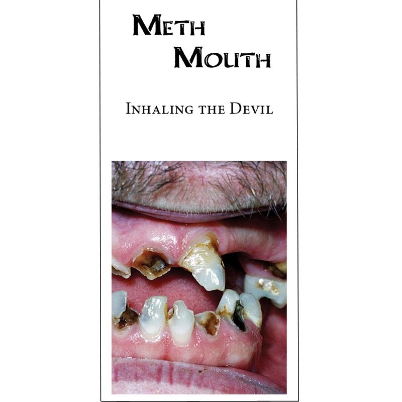 Inhaling The Devil (Meth Mouth)
